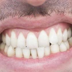 صرير الأسنان المزعج.. هل نستطيع التخلص منه؟